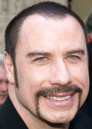 John-Travolta-plastic-surgery